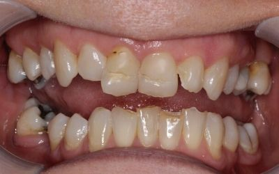 crooked, chipped teeth before treatment