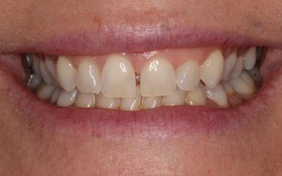 discoloured teeth with excessive spacing before treatment.