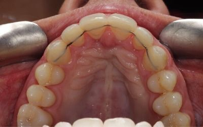 photo from inside the mouth of fixed retainer on the front six teeth after Quick Straight Teeth treatment at Bupa Dental Care