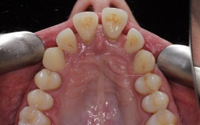 discoloured teeth with gaps before treatment, photo taken inside mouth.