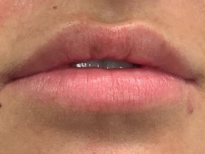 patient before lip filler treatment