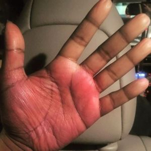 Raynaud's disease on the palm