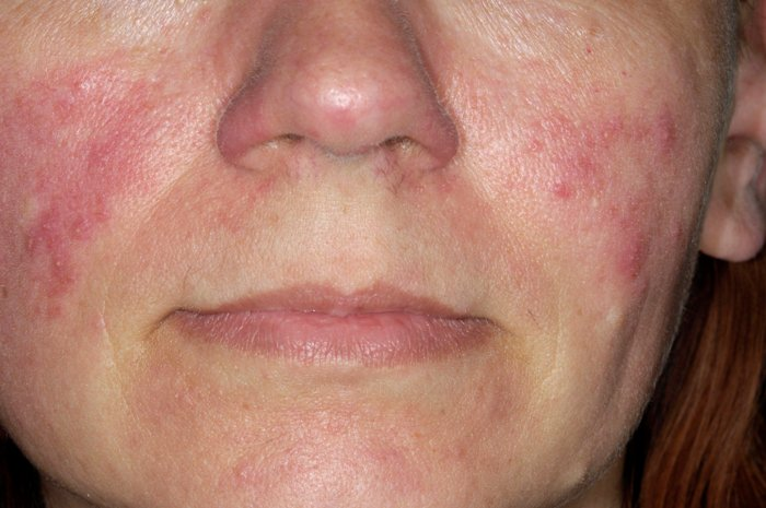 How To Combat Rosacea