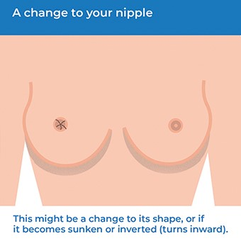 Infographic showing how a change to your nipple can be a symptom of breast cancer