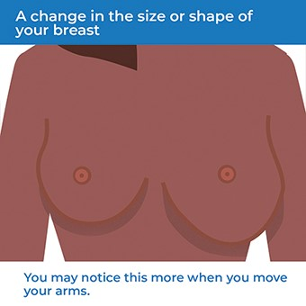 An image showing how a change in the size or shape of your breast can be a symptom of breast cancer