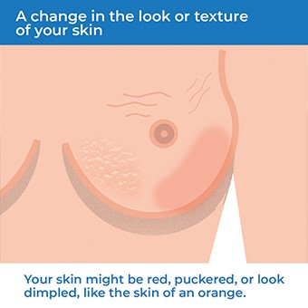 An image showing how a change in the texture of your skin can be a symptom of breast cancer