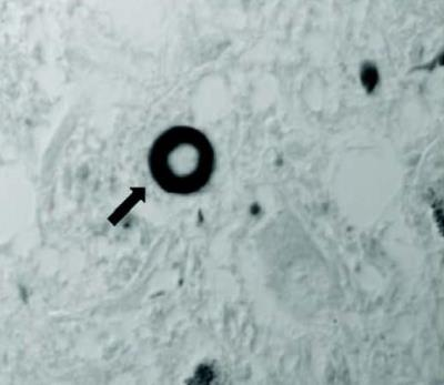 Image of a part of the brain under a microscope, showing a Lewy body