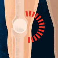 Explore your knee pain | Bupa Knee Clinic