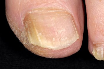 Fungal skin infections | Health Information | Bupa UK