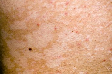 Pityriasis versicolor infection