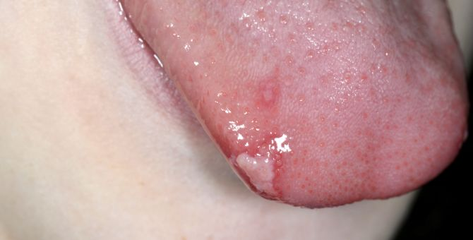 Ulcers on the tongue caused by hand, foot and mouth disease