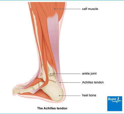 Image showing the Achilles tendon