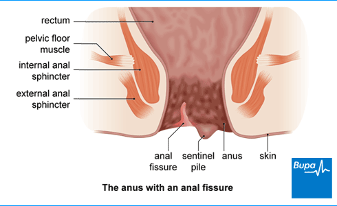An image showing an anal fissure