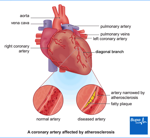 Image showing a coronary artery affected by atherosclerosis