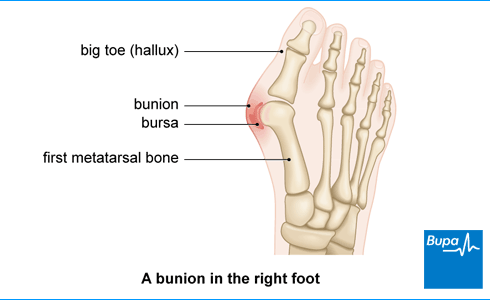 Image showing a bunion in the right foot