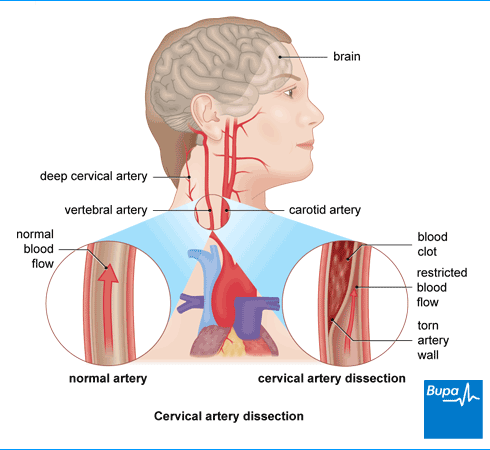 Image showing cervical artery dissection