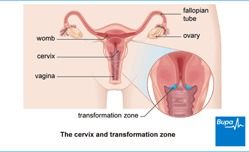 Image showing the cervix and transformation zone