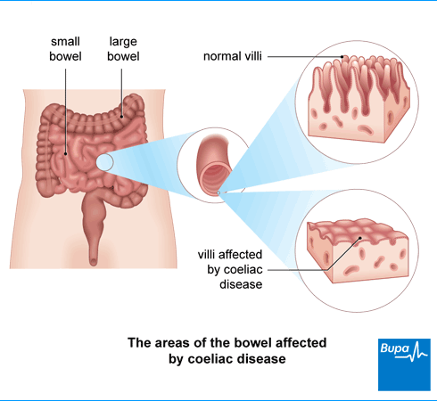 Coeliac disease illustration by Bupa UK