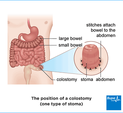 An image showing a diagram of the colostomy