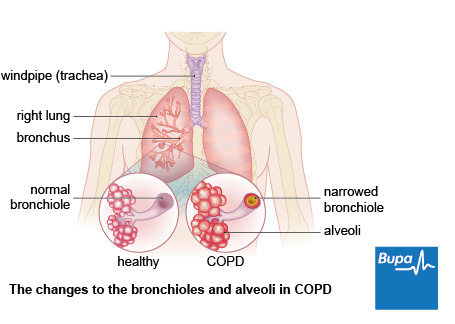 Chronic obstructive pulmonary disease copd health information image showing the changes to the bronchioles and alveoli in copd ccuart Choice Image