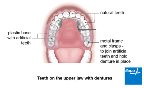Image showing teeth on the upper jaw with dentures