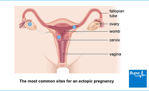 An image showing the most common sites for an ectopic pregnancy