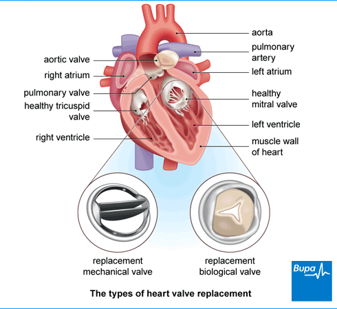 An image showing the types of heart valve replacement