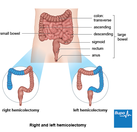 A diagram showing the section of bowel removed during a right and left hemicolectomy