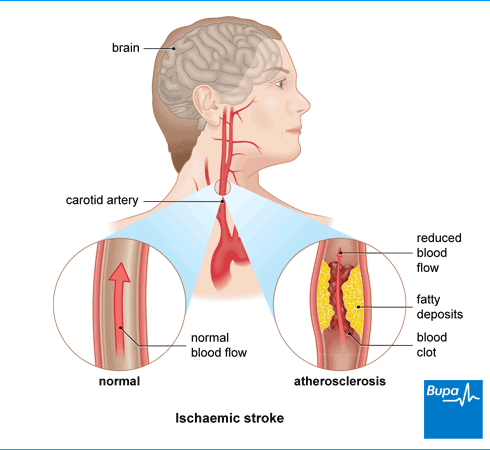 An image showing ischaemic stroke