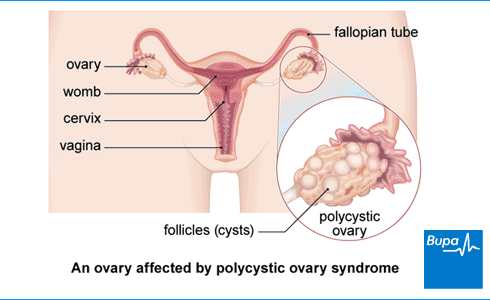 An image showing an ovary affected by polycystic ovary syndrome