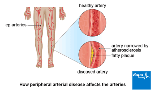An image showing how peripheral arterial disease affects the arteries