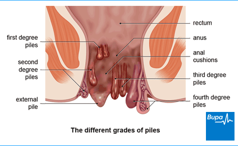 An image showing the different grades of piles