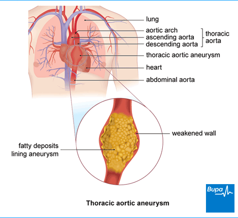 An image showing thoracic aortic aneurysm