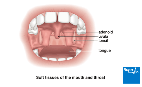 An image showing the soft tissues of the mouth and throat