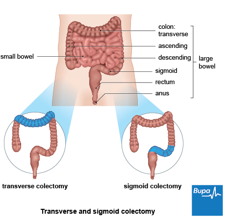 A diagram showing the section of bowel removed during a transverse and sigmoid colectomy